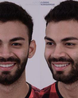 Matheus Rosto