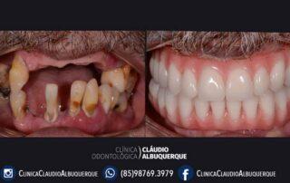 tratamento dentario com Dr. Claudio Albuquerque