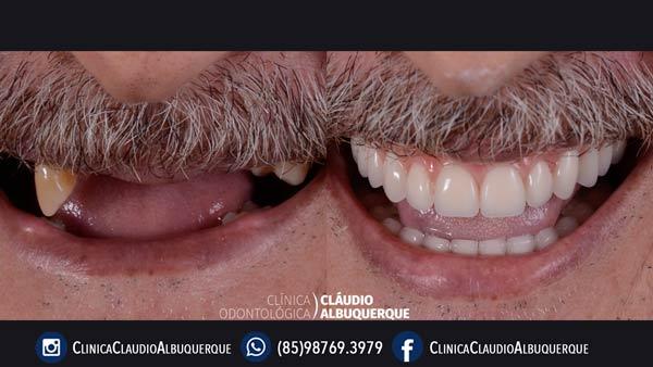 antes e depois de implante dentário