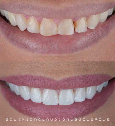 lente de contato nos dentes sem desgaste