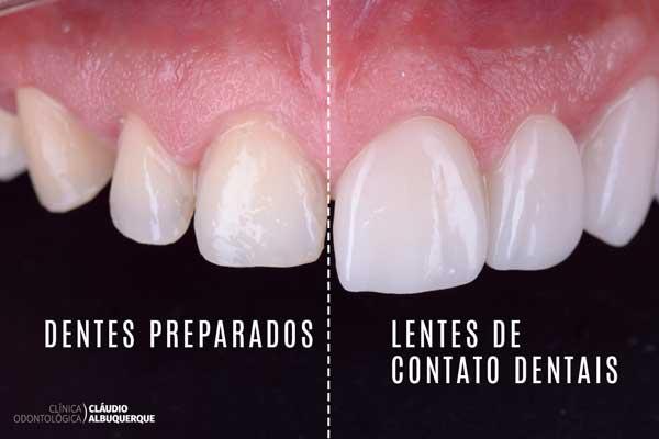 Dentes preparados com lentes de contato
