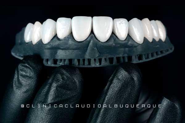 Lentes de Contato dentais prontas pra cimentação