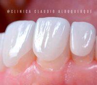 Lente de contato dental sem desgastar