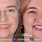 troca de dentadura por implante dentário em fortaleza